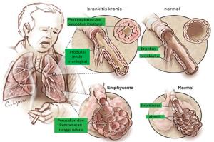 bronkitis dan emfisema